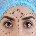 جراحی لیفت ابرو
