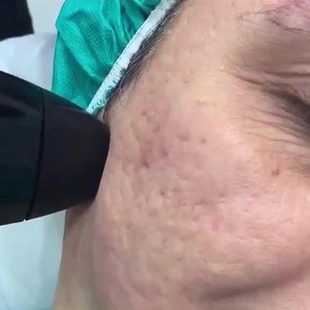 درمان موثر منافذ باز صورت