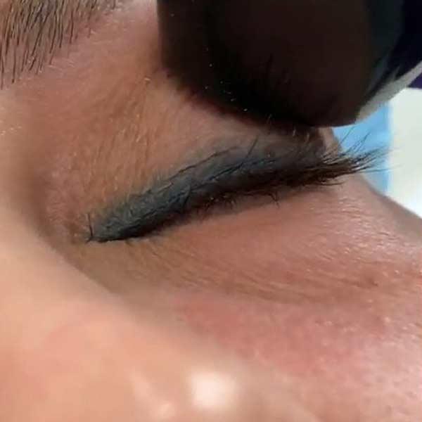 درمان پف پشت پلک