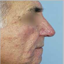 جراحی بینی استخوانی در تهران